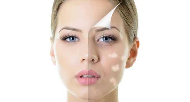 tratamiento para manchas blancas en la piel