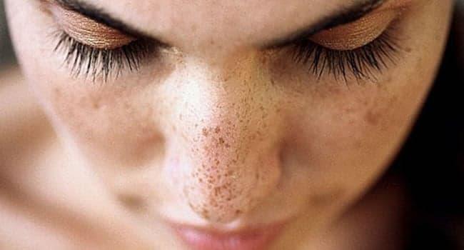tratamiento para manchas oscuras en la cara