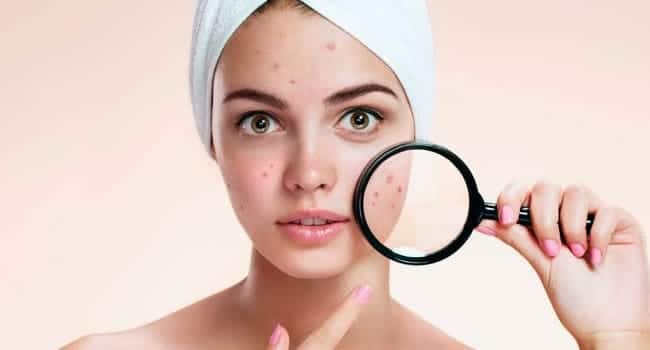 acne infectado tratamiento