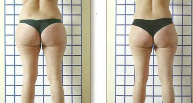 drenaje linfatico piernas