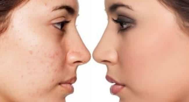 hidratacion facial opiniones antes y despues