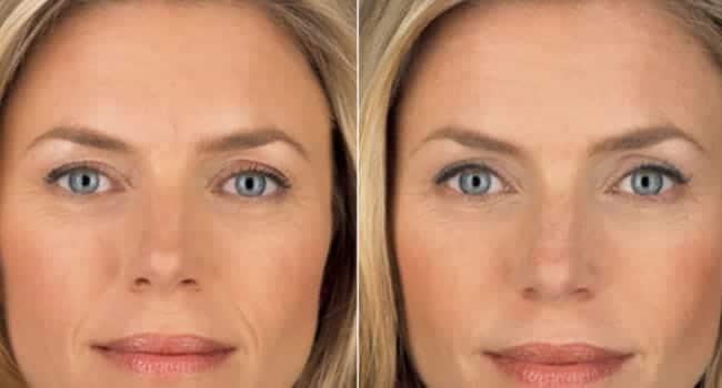 precio tratamiento hidratacion facial antes y despues
