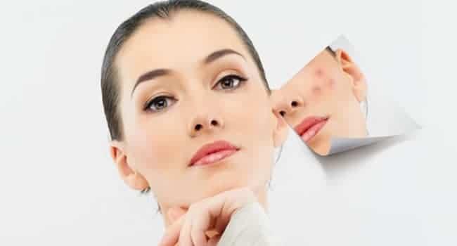tratamiento cicatrices acne