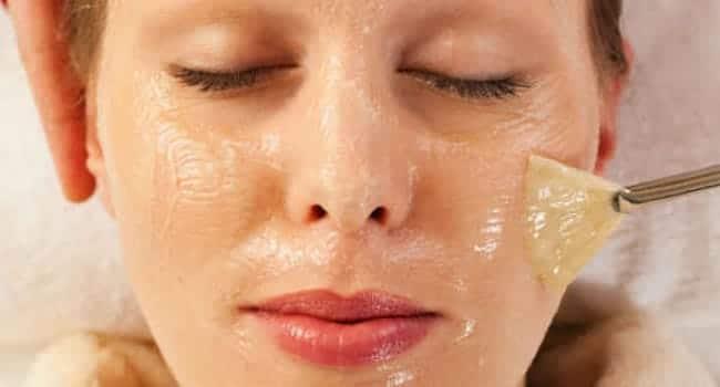tratamientos anti acne precios